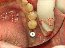 南館歯科クリニックのブログ